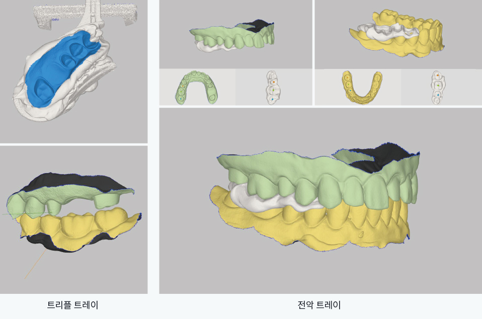 Easy and quick occlusal alignment